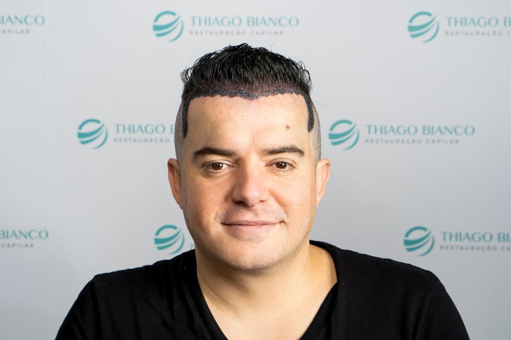 Belutti faz novo transplante capilar em São Paulo 42