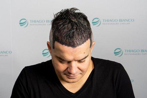 Belutti faz novo transplante capilar em São Paulo 43